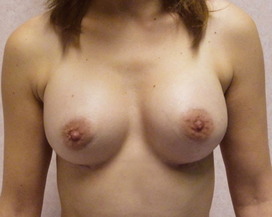 Breast Enlargement Before and After Image
