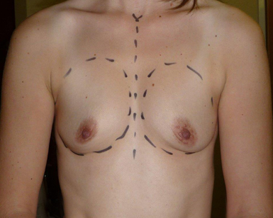 Breast Enlargement Before and After Picture