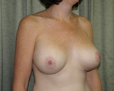 Breast Reduction Before and After Picture