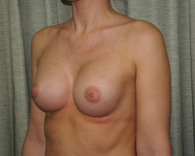 Breast Liposuction Before and After Image