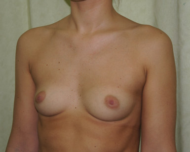 Breast Liposuction Before and After Picture
