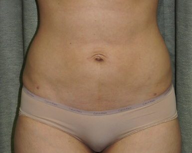Smart Lipo Before and After Picture