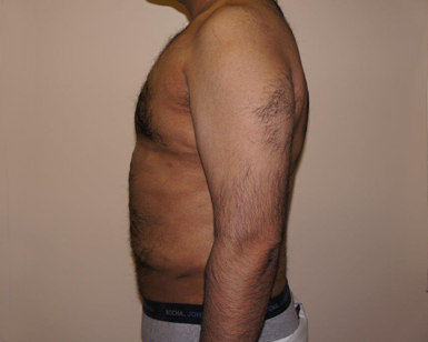 Laser Liposuction Before and After Picture