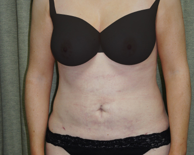 Vaser Liposuction Before and After Picture