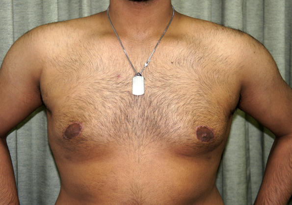 Breast Fat Transfer Before and After Image