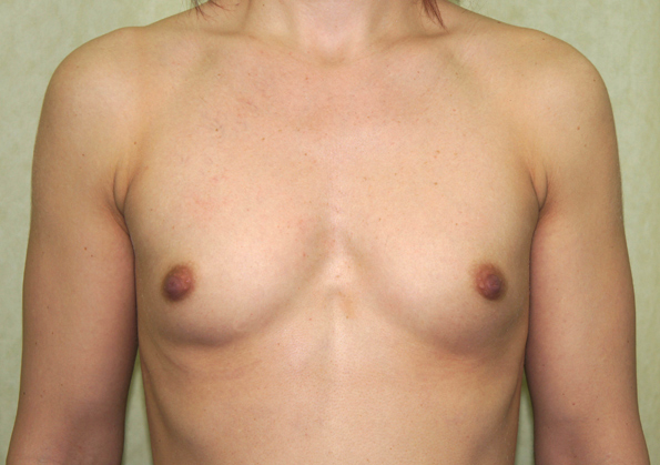 Breast Fat Transfer Before and After Picture