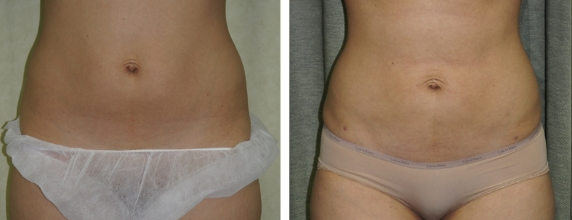 Lipo Before and After