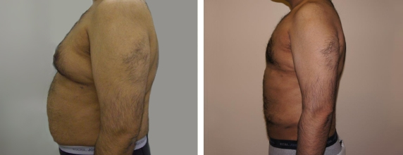 Smart Lipo Before and after